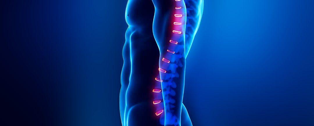 10 alternativas a Dolor de hombro