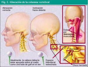 Lesión de músculos de cuello por trabajo, Cervicalgia